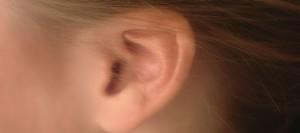 I rimedi per le orecchie a sventola